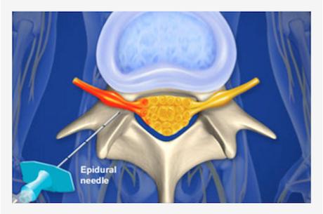 regional anesthesia: nerve blocks | bca chemistry, Muscles